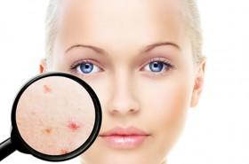 Izliječite akne prirodnim putem