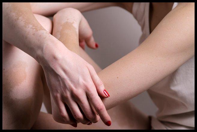 Prirodni recepti za bijele mrlje na koži