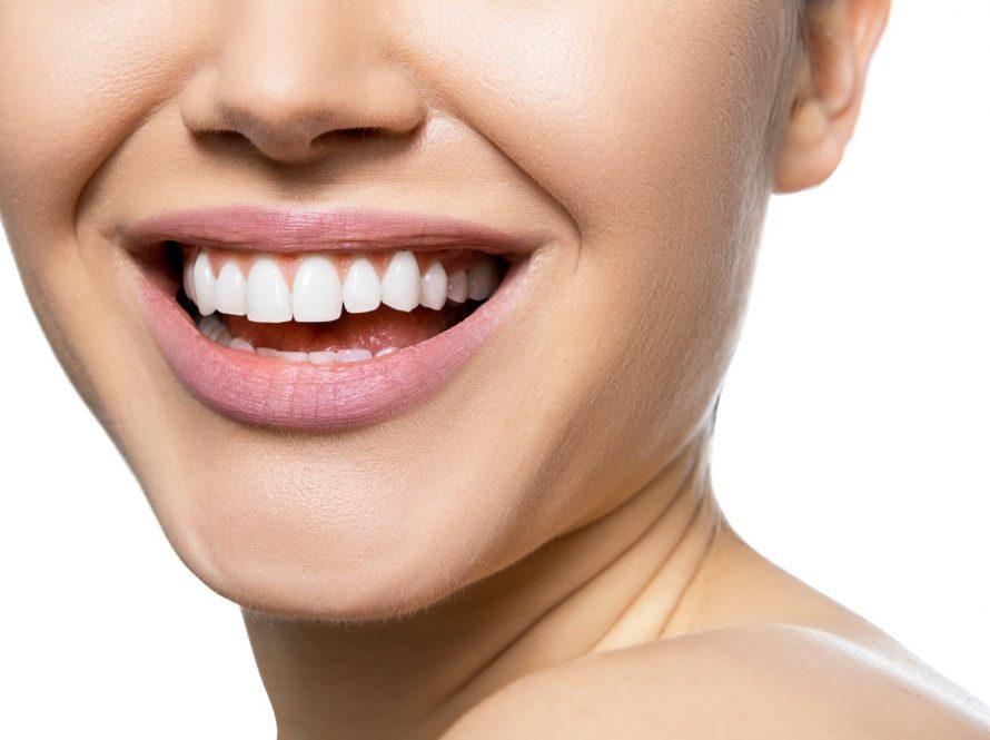 Što su ljuskice za zube?